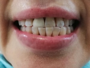 Whitening beore after shaped2